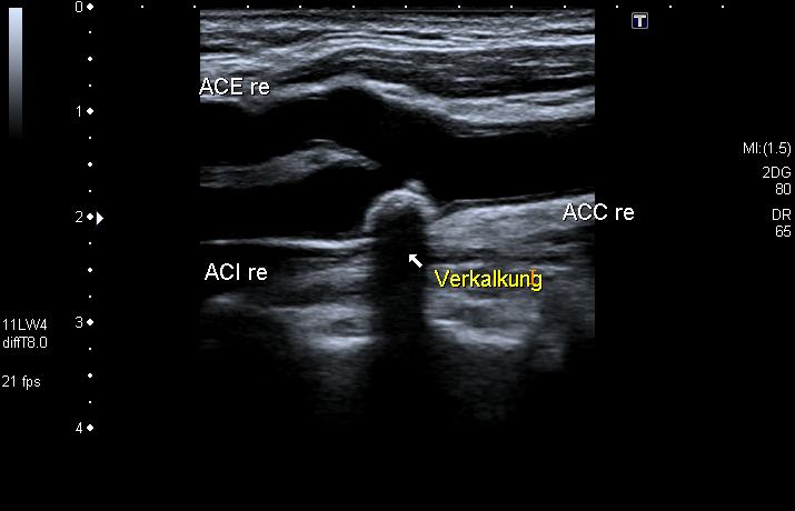 Verkalkung Halsschlagadern