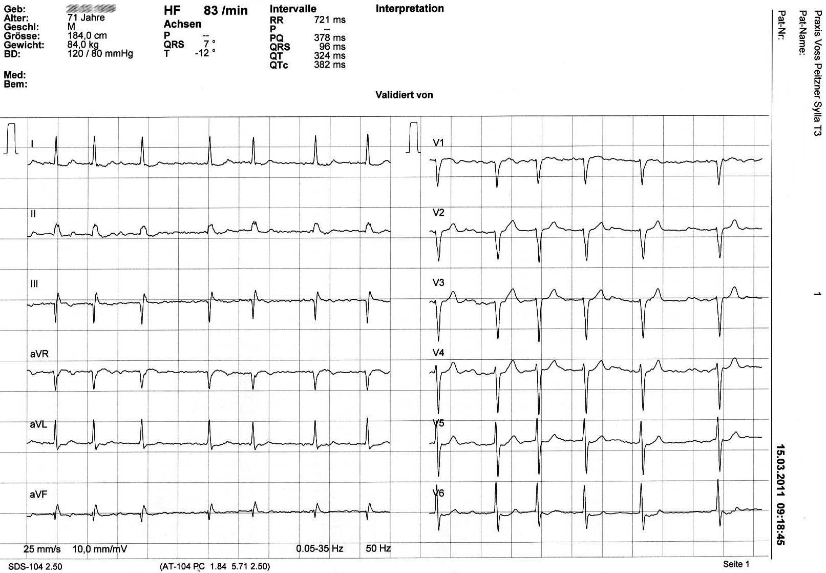 Ruhe EKG